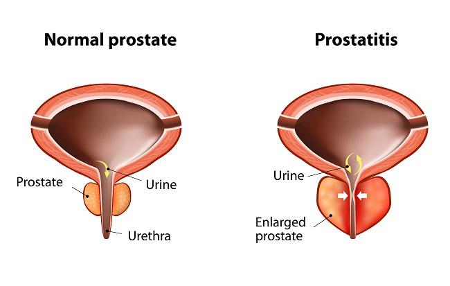 Prostatitis szivattyú