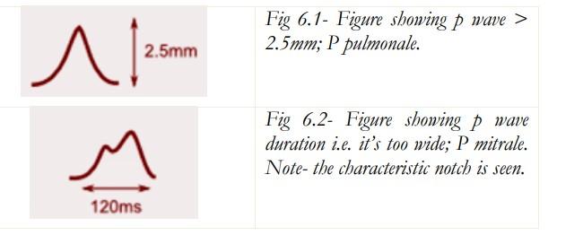 Gambar 1. P pulmonale (atas) dan P mitral (bawah). Sumber Gambar: Openi, 2012